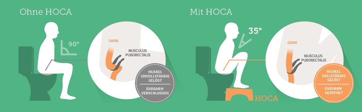 hoca-effekt